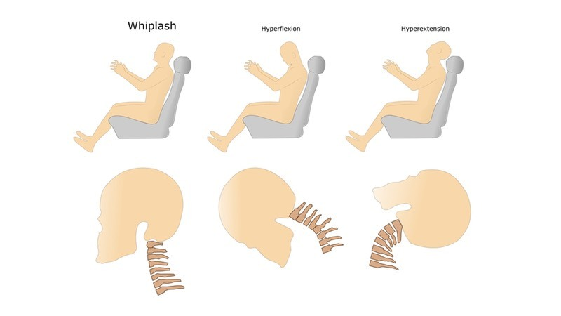 Neck injuries: whiplash, hyperflexion, hypertension